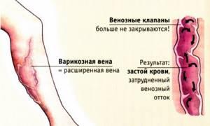 застой крови в ногах симптомы лечение