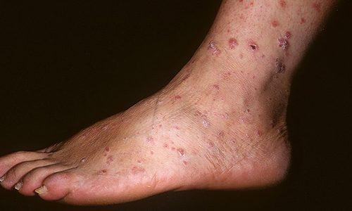 зуд на ногах между пальцев симптомы лечение