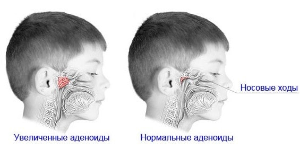 аденоиды у ребенка 2 лет симптомы и лечение