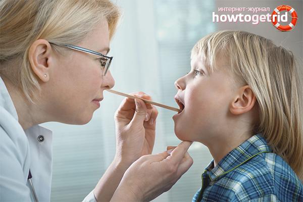 аденоиды у ребенка 6 лет симптомы и лечение