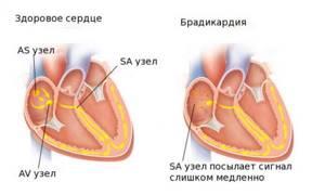 брадикардия симптомы и лечение у детей