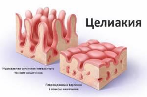 ферментопатия у детей симптомы лечение