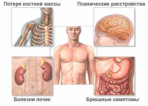 гиперпаратиреоз симптомы лечение у детей