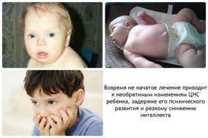 гипотиреоз симптомы и лечение у детей