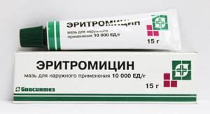 холестаз симптомы лечение у детей