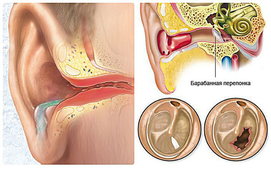 инфекция у новорожденного ребенка симптомы и лечение