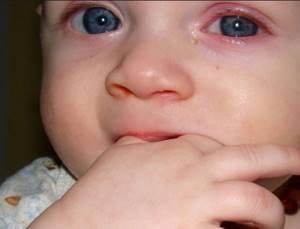 коньюктивит у детей лечение и симптомы