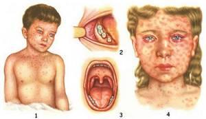 корь симптомы лечение у детей
