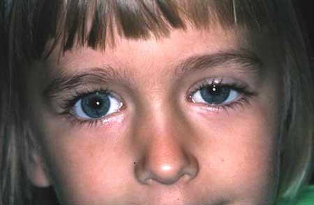 листериоз у детей симптомы и лечение