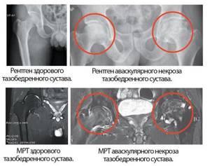 некроз тазобедренного сустава симптомы и лечение у ребенка