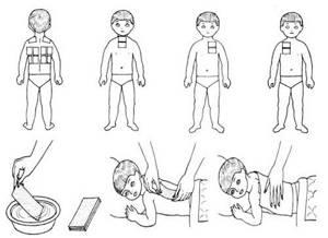 обструктивный бронхит симптомы лечение у детей