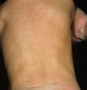 розеола у детей симптомы лечение