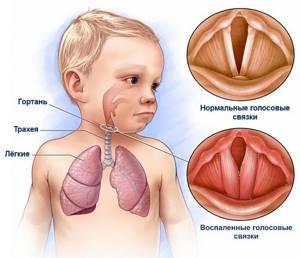 трахеоларингит симптомы и лечение у детей