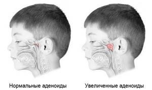 увеличены аденоиды у ребенка симптомы и лечение