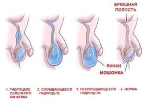 водянка у детей симптомы и лечение